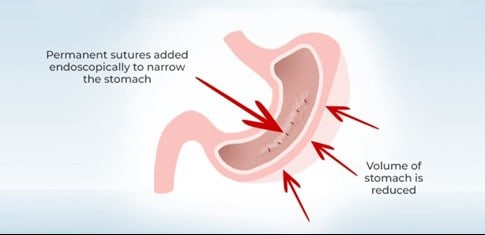 graphic of stomach showing the size reduction from endosleeve suturing