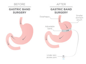 stomach graphic before and after gastric band surgery