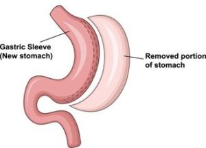stomach graphic showing the removed portion after gastric sleeve surgery