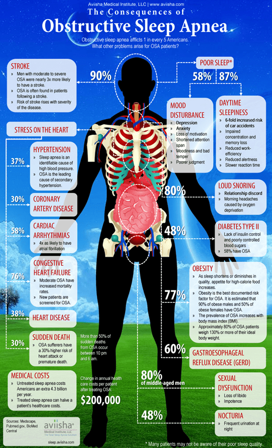 graphic with details of obstructive sleep apnea