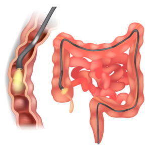colon graphic with endoscope